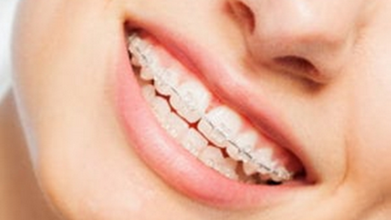 Is It Possible to Straighten Teeth Without Wire Braces?